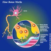 Botoxz