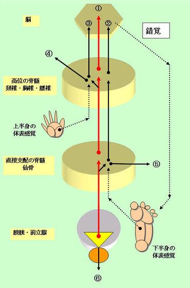 慢性前立腺炎の症状分類と分析 :...