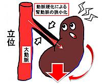 Aortakidney2