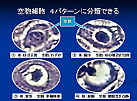 Koilocytosis