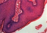 Condymicro