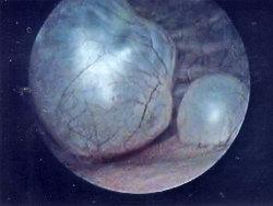 Ureterocele22398m286cyst