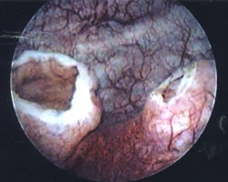 Ureterocele22398m287cyst